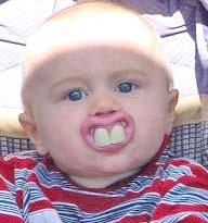 buck-teeth